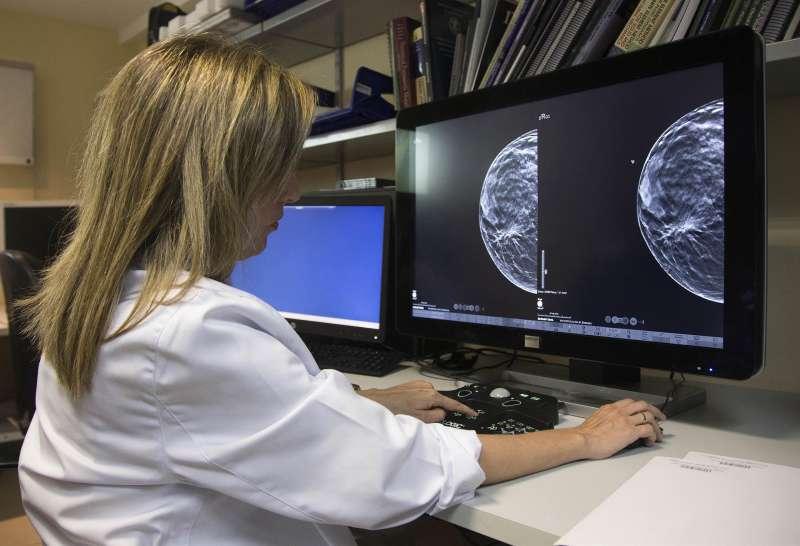 Imagen de archivo de una doctora analizando imágenes de una paciente con cáncer de mama. EFE